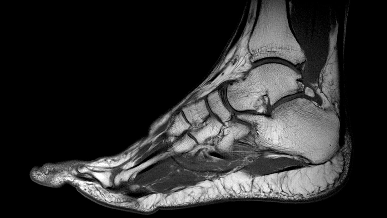мрт коленного сустава в новосибирске недорого