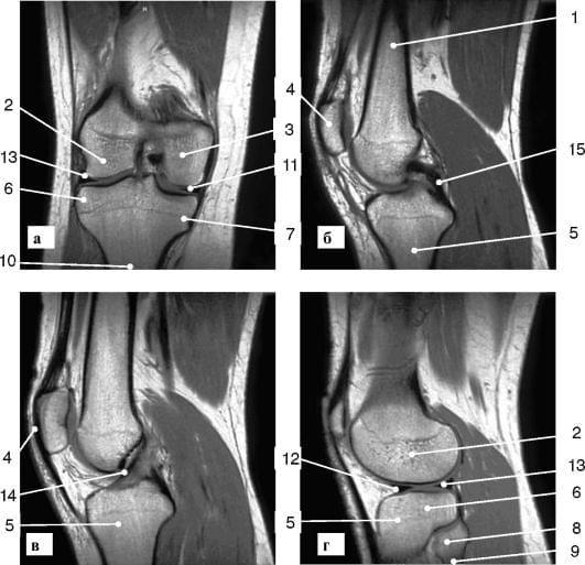 хондропатия мыщелка коленного сустава